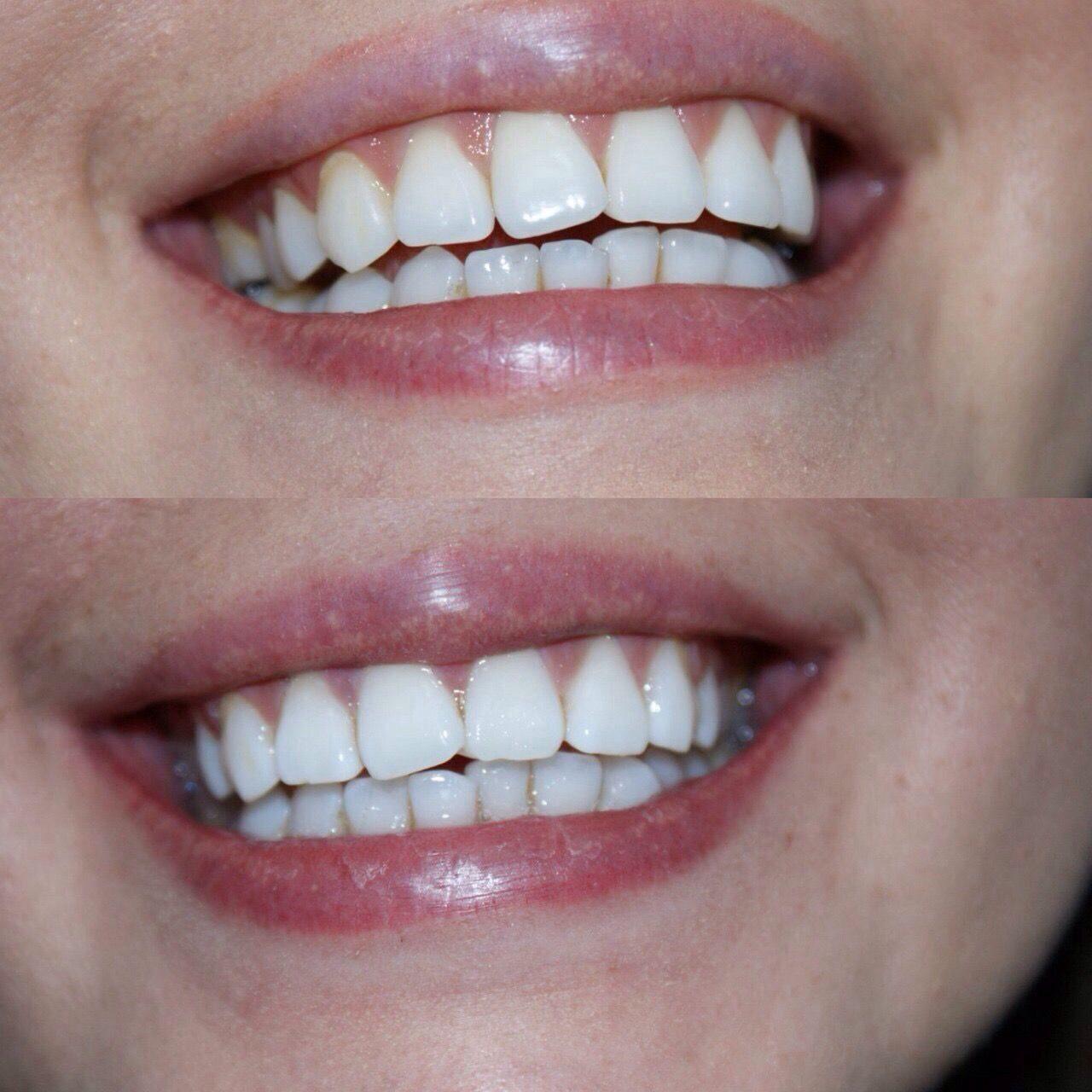 отбеливание зубов одинцово